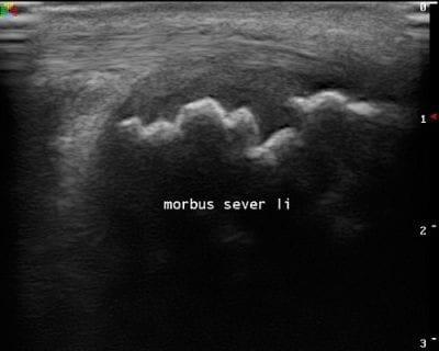 Echografie Morbus Sever Podotherapie Reggestreek Rijssen