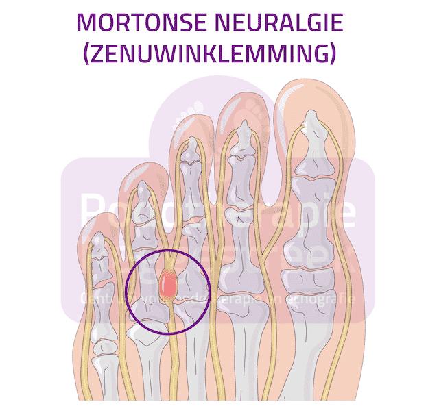 Mortonse Neuralgie Zenuwinklemming Voet Podotherapie Reggestreek Rijssen