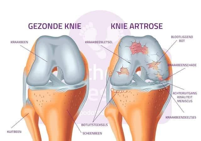 Artrose Knie Gonartrose Podotherapie Reggestreek Rijssen