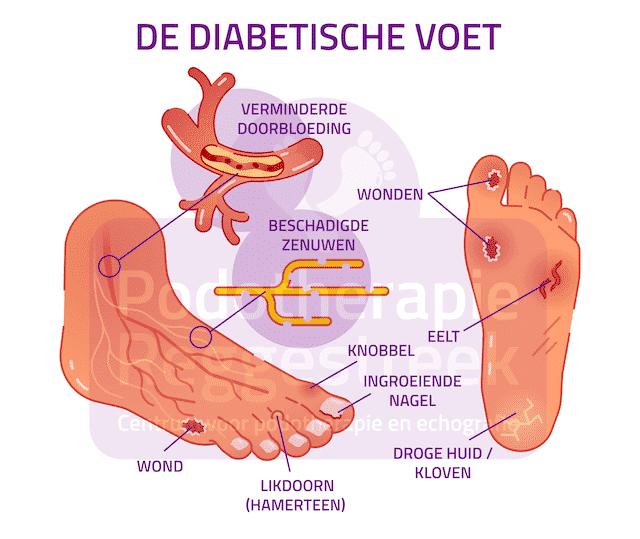 De Diabetische Voet Podotherapie Reggestreek Rijssen