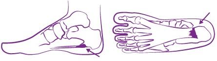 Hielspoor podotherapie Reggestreek Rijssen