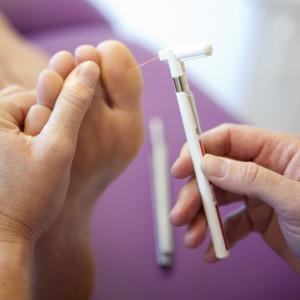 Monofilament Diabetische Voetscreening Podotherapie Reggestreek Rijssen