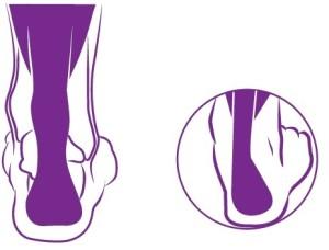 Overpronatie voet Podotherapie Reggestreek Rijssen1